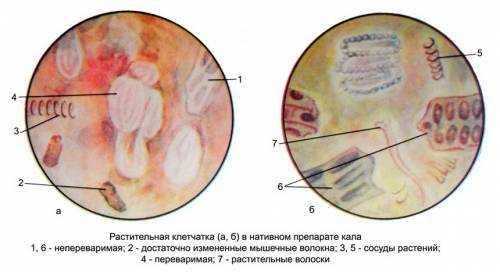 Непереваренная клетчатка в кале у взрослого причины